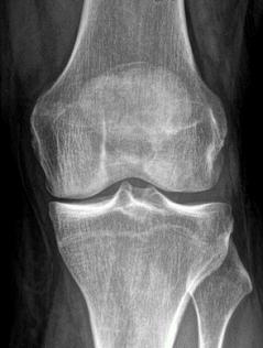Posttraumatische Arthrose